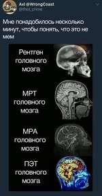(у. Ах1 (5>\Л/гопдСоа51 <§№о(_слте Мне понадобилось несколько минут, чтобы понять, что это не мем Рентген головного мозга МРТ головного мозга МРА головного мозга ПЭТ головного мозга